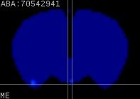 ABA expression energy