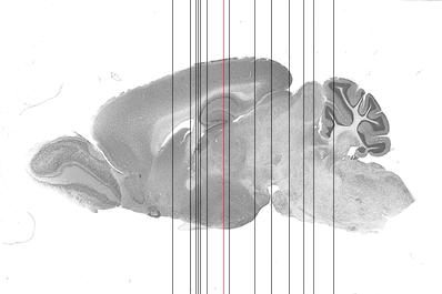 Sagittal sections